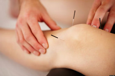 Dry Needling at Knee and feet